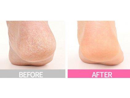 Victoria Beauty Pedikúra Samoslupovací zábal na nohy se šnečím extraktem